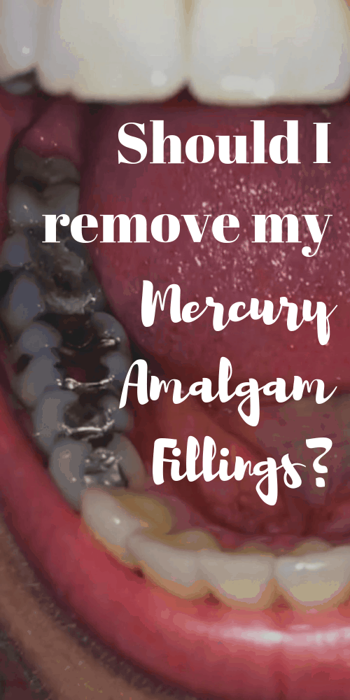 Should I Remove My Mercury Amalgam Fillings?