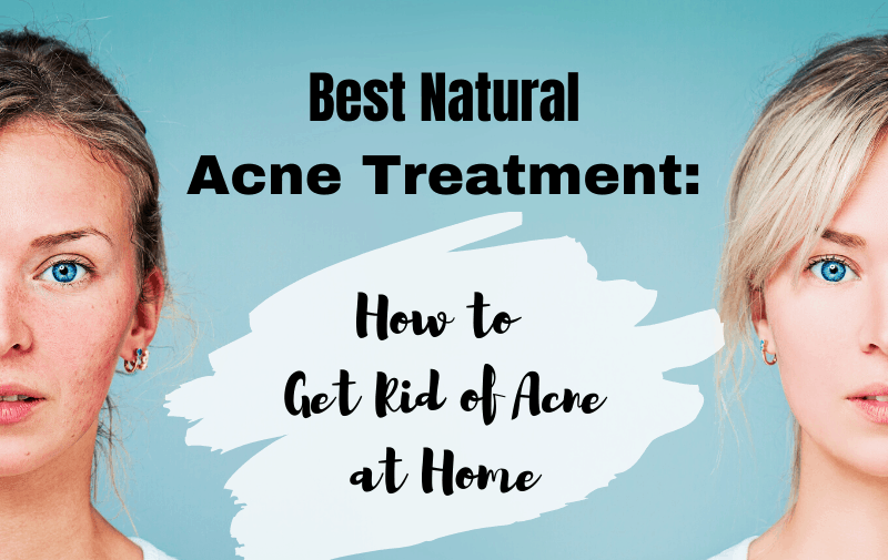 Best Natural Acne Treatment How To Get Rid Of Acne At Home