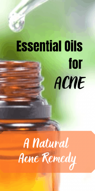 Using essential oils for acne is a great way to clear up your skin.